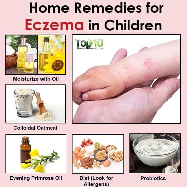 eczema-edit-k0y33b9d