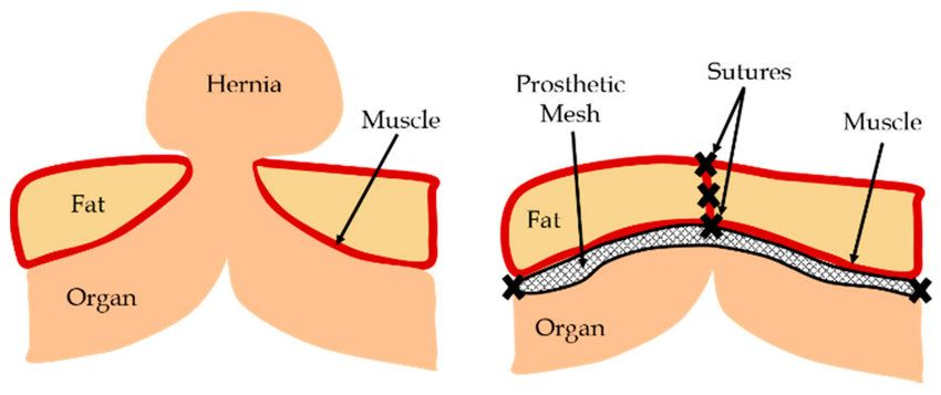 schematic-of-hernia-and-hernia-repair-using-a-prosthetic-mesh-k1kkun3b